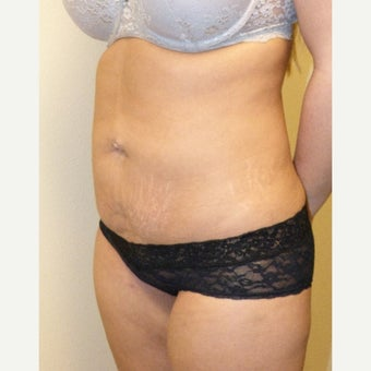 25-34 year old woman treated with Smart Lipo to abdomen and inner thighs 1682736