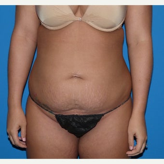 25-34 year old woman treated with Smart Lipo to abdomen and inner thighs before 1682736