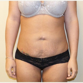 25-34 year old woman treated with Smart Lipo to abdomen and inner thighs after 1682736