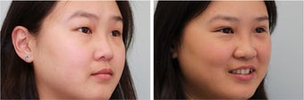 Double eyelid incisional surgery - before & 2 months post op after 921753