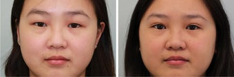 Double eyelid incisional surgery - before & 2 months post op before 921753