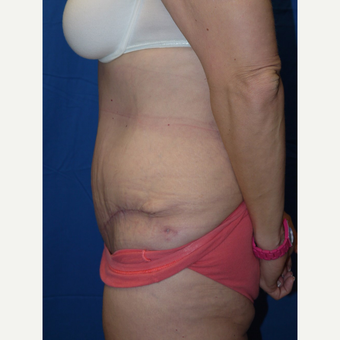 Tummy Tuck after 3743963