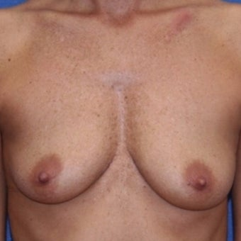 35-44 year old woman treated with Breast Augmentation before 2196940