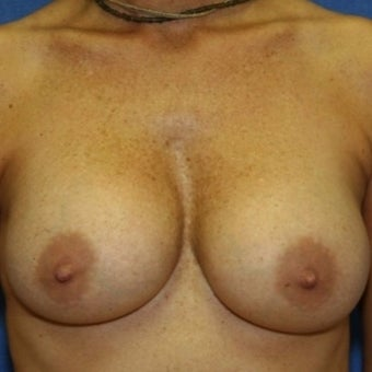35-44 year old woman treated with Breast Augmentation after 2196940