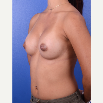 25-34 year old woman treated with Breast Augmentation after 3696145