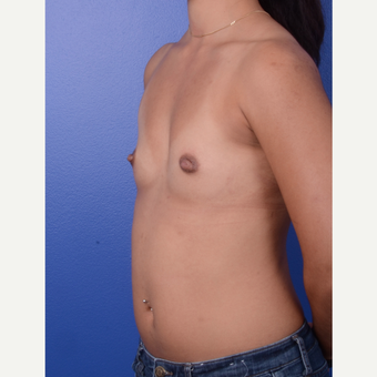 25-34 year old woman treated with Breast Augmentation before 3696145