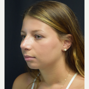 18-24 year old woman treated with Rhinoplasty after 3179651
