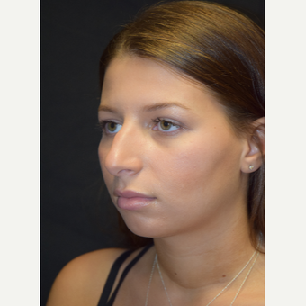 18-24 year old woman treated with Rhinoplasty before 3179651