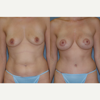 25-34 year old woman treated with Mommy Makeover before 3583744