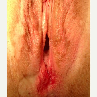 45-54 year old woman treated with Vaginoplasty before 2545176