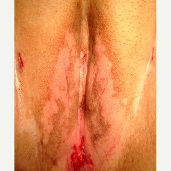 45-54 year old woman treated with Vaginoplasty after 2545176