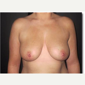 25-34 year old woman treated with Breast Lift before 2988121