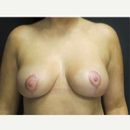 25-34 year old woman treated with Breast Lift after 2988121
