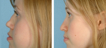 Functional Rhinoplasty before 1208312