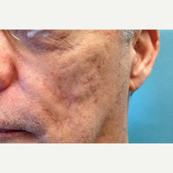 55-64 year old man treated with Scar Removal after 1579504