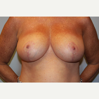 55-64 year old woman treated with Breast Reduction after 3565647