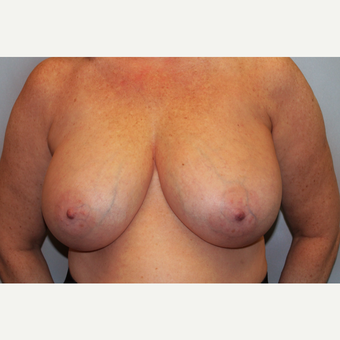 55-64 year old woman treated with Breast Reduction before 3565647