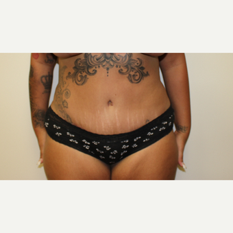 Tummy Tuck after 3417757