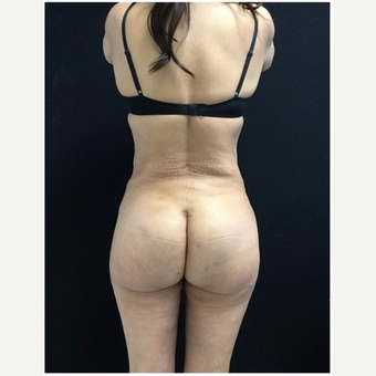 55-64 year old woman treated with Brazilian Butt Lift after 3046527