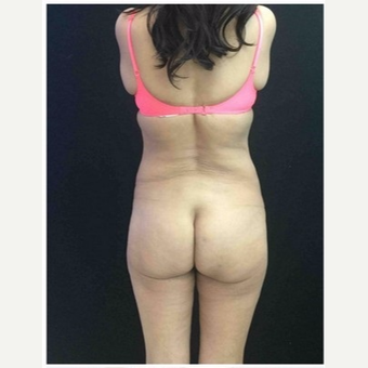 55-64 year old woman treated with Brazilian Butt Lift before 3046527