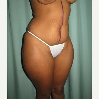 25-34 year old woman treated with Tummy Tuck before 2062304