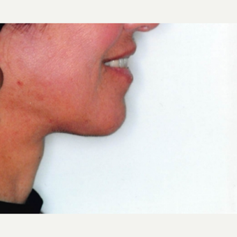55-64 year old woman treated with Neck Lift after 3764496