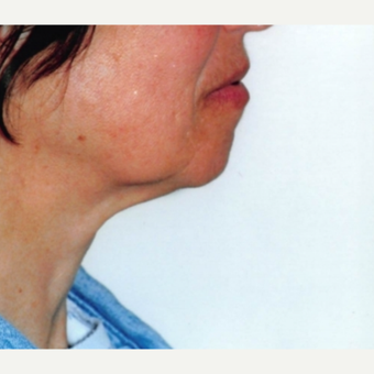 55-64 year old woman treated with Neck Lift before 3764496