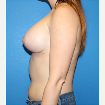 25-34 year old woman treated with Breast Implants after 3281420