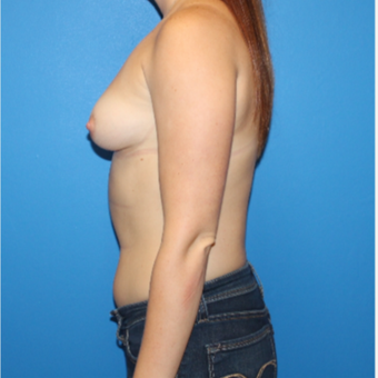 25-34 year old woman treated with Breast Implants before 3281420
