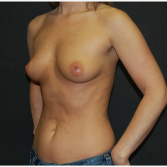 25-34 year old woman treated with Breast Implants before 2994481