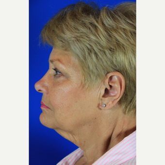 Facelift, Fat Transfer before 3684746