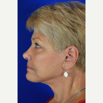 Facelift, Fat Transfer after 3684746