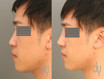 24 year old male before and after nonsurgical Asian rhinoplasty.  before 1034901