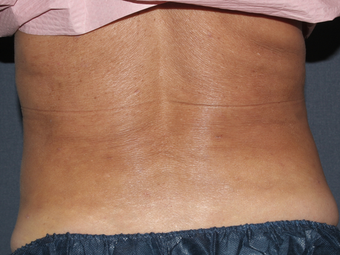 Liposculpture after 596227