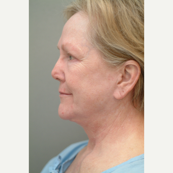 65-74 year old woman treated with Neck Lift before 3764563