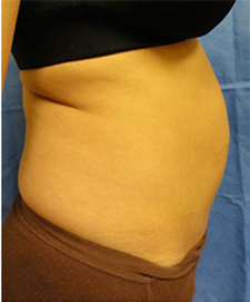 35-44 year old woman treated with Tummy Tuck 1838603