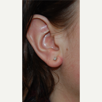 25-34 year old woman treated with Ear Lobe Reduction Surgery after 3508258