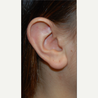 25-34 year old woman treated with Ear Lobe Reduction Surgery before 3508258