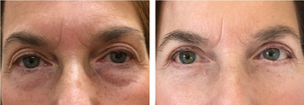55-64 year old woman treated with Eye Bags Treatment
