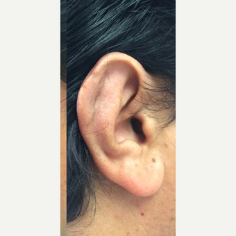 25-34 year old man treated with Ear Surgery after 3191435
