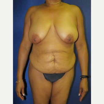 55-64 year old woman treated with Mommy Makeover before 3136049