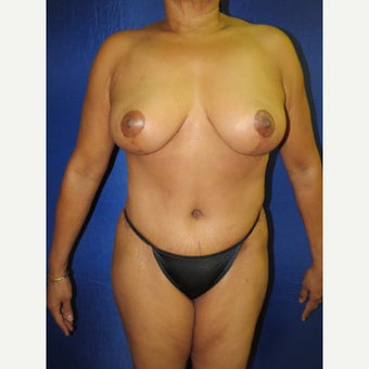 55-64 year old woman treated with Mommy Makeover after 3136049