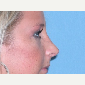 18-24 year old woman treated with Rhinoplasty after 3743262