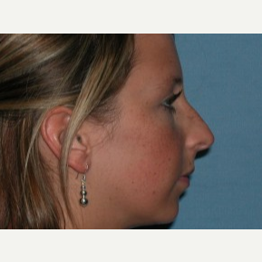18-24 year old woman treated with Rhinoplasty before 3743262