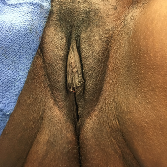 25-34 year old woman treated with Labiaplasty after 3802375