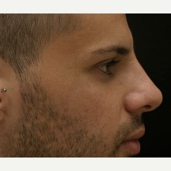 25-34 year old man treated with Non Surgical Nose Job