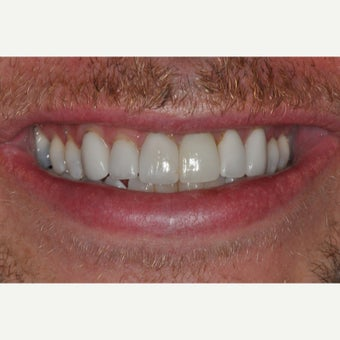 38 year old man treated with Dental Implants after 2533516