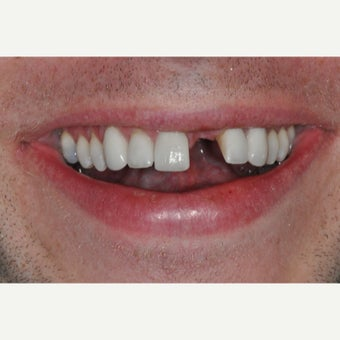 38 year old man treated with Dental Implants