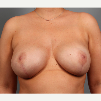 25-34 year old woman with BRCA+ gene treated with prophylactic Breast Reconstruction after 3344827