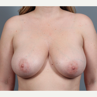 25-34 year old woman with BRCA+ gene treated with prophylactic Breast Reconstruction before 3344827